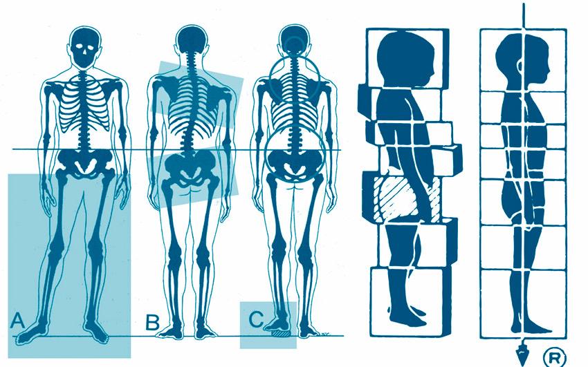 Desequilibrios posturales que generan molestias